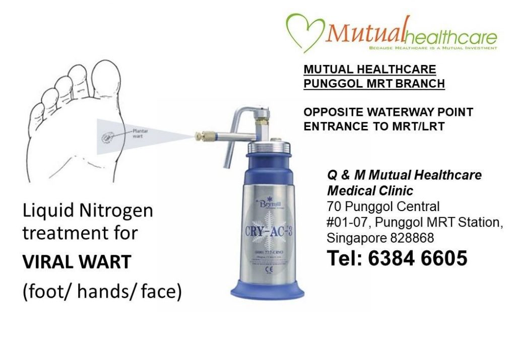 Cryotherapy using Liquid Nitrogen @ -196°C is used for treatment against stubborn warts
